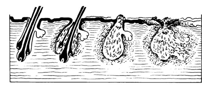 Развитие личинок в коже кролика